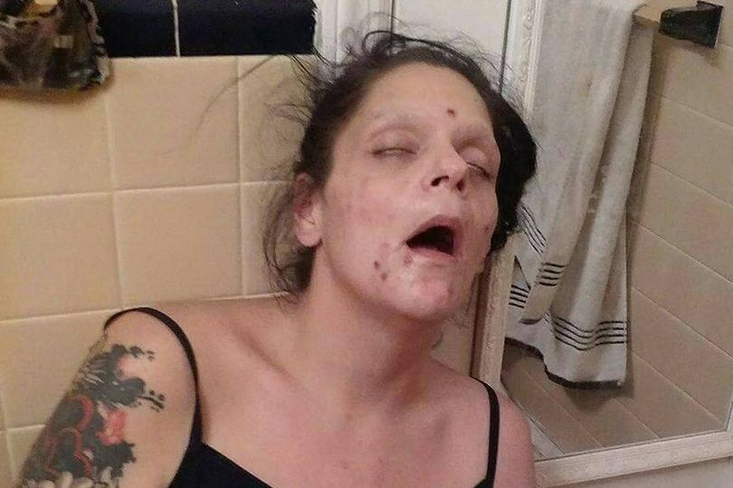 Woman-Shares-Graphic-Photos-to-Show-Addiction.jpg